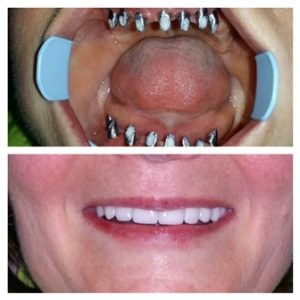 dental implants belgrade