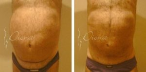Liposuction Serbia