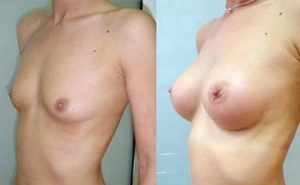 Breast augmentation Serbia