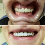 Teeth Whitening Serbia