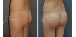 Buttocks Augmentation Serbia