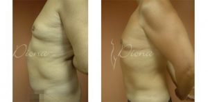 Liposuction Serbia