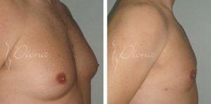Gynecomastia Serbia