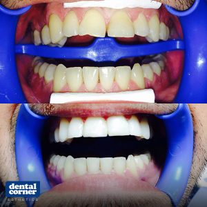 Dental-Corner-Esthetics-case-2-300x300