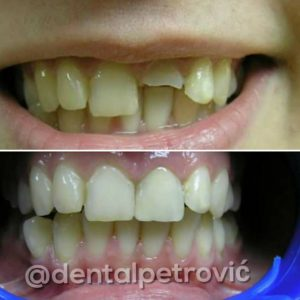 Dental Crowns Serbia