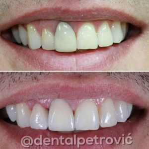 dental_petrovic_non_metal_crown_5-300x300