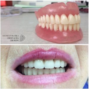 dr_bede_total_denture_5-300x300