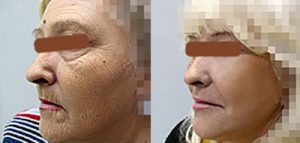 Plastic surgery Belgrade