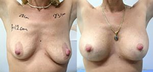 Breast Lift Serbia