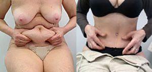 Tummy Tuck Serbia