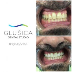 dental studio glusica