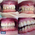 dental corner esthetics