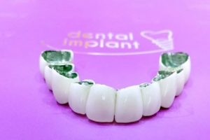 dental implant clinic