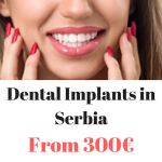 Dental Implants Abroad – Dental Implants from 300€ in Serbia