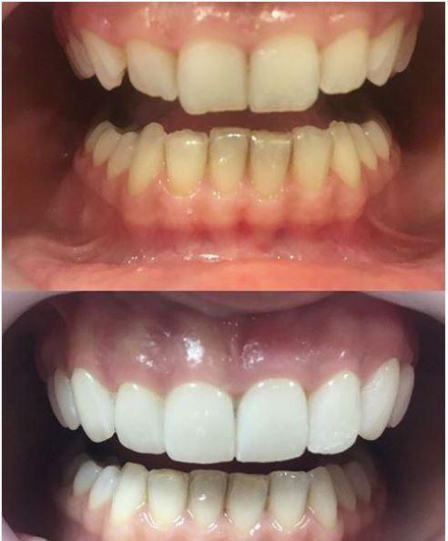 Beli zubi beograd