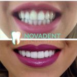 NOVADENT-whatclinicserbia-cases-2-1