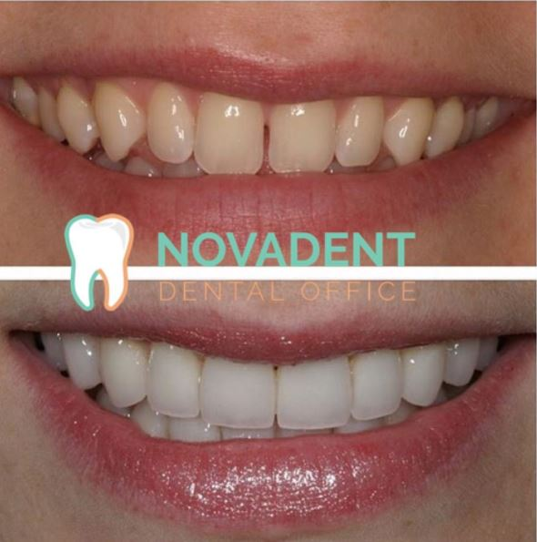 NOVADENT-whatclinicserbia-ceramic_veneers_1