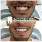 NOVADENT-whatclinicserbia-ceramic_veneers_3