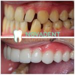 NOVADENT-whatclinicserbia-ceramic_veneers_4