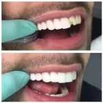 NOVADENT-whatclinicserbia-dental-veeners