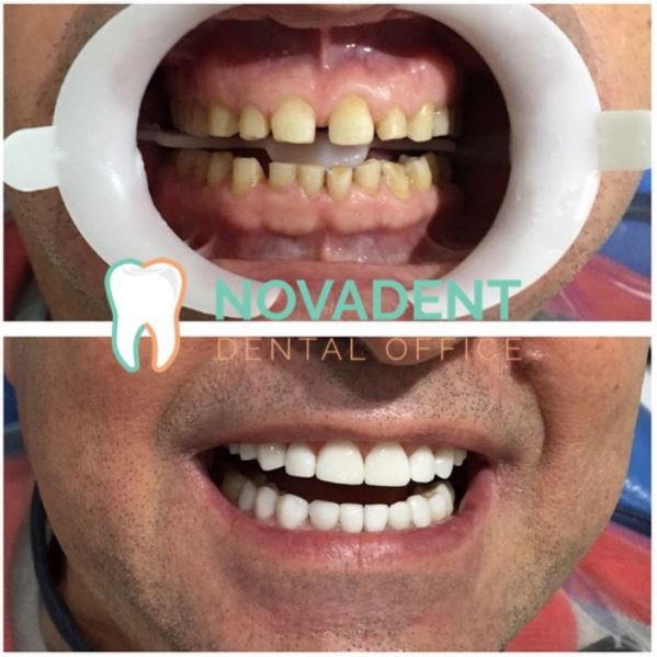 NOVADENT-whatclinicserbia-dental-veeners_1