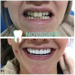 NOVADENT-whatclinicserbia-dental-veeners_dental_crowns_1