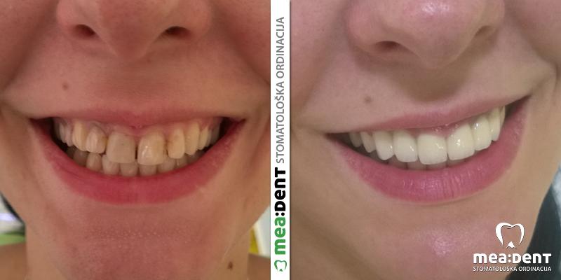 Neodent gel za izbeljivanje zuba