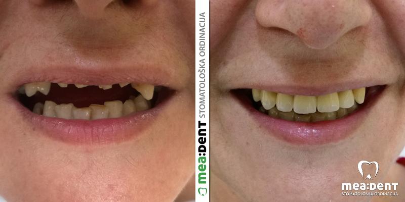 Zubne navlake