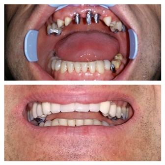 dental_implants_serbia_1