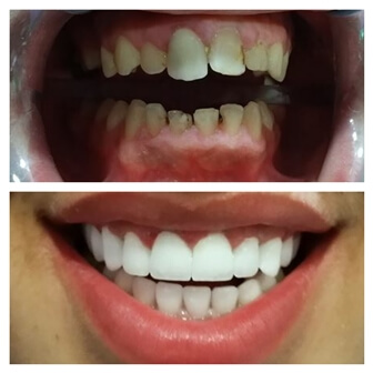 dental_implants_serbia_3