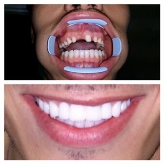 dental_implants_serbia_4