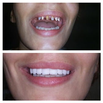 dental_implants_serbia_5