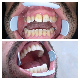 dental_implants_serbia_6