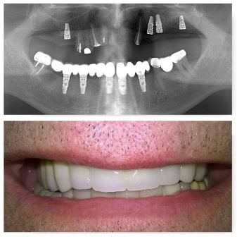 dental_implants_serbia_9