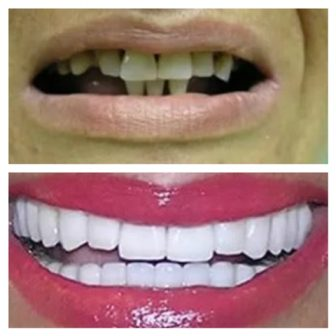 dental_implants_serbia_whatclinicserbia_11