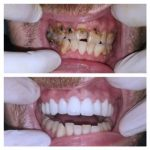 dental_implants_serbia_whatclinicserbia_21